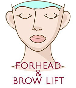 Forehead & Brow Lift